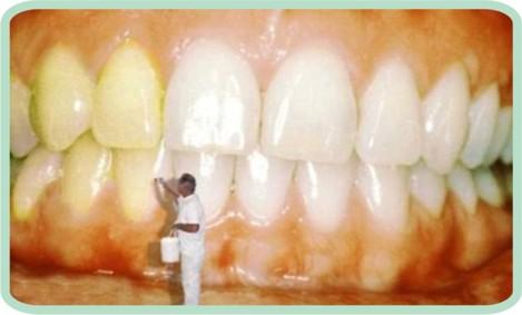 dentes3